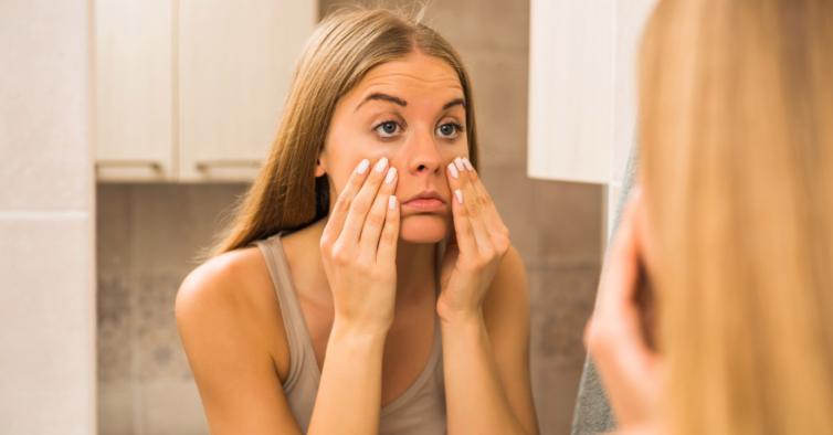 Sabia que alguns alimentos podem ser culpados pelas nossas olheiras?